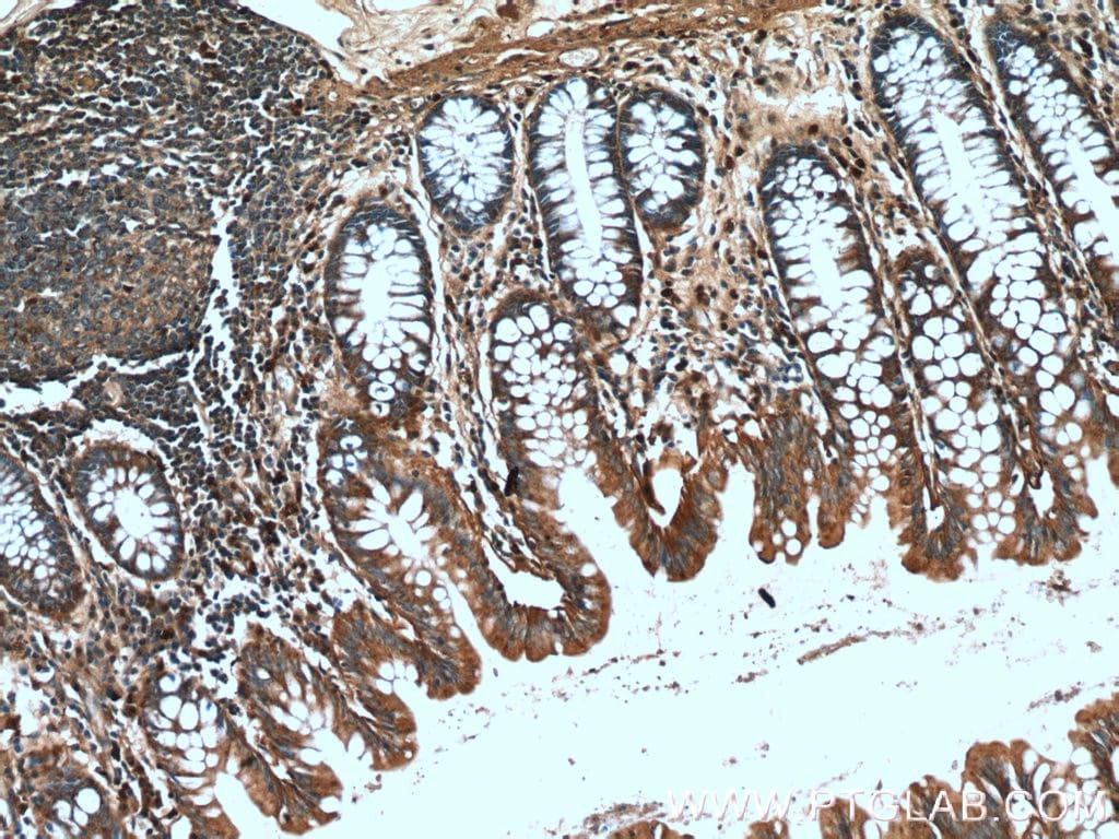 DTX1 Antibody in Immunohistochemistry (Paraffin) (IHC (P))