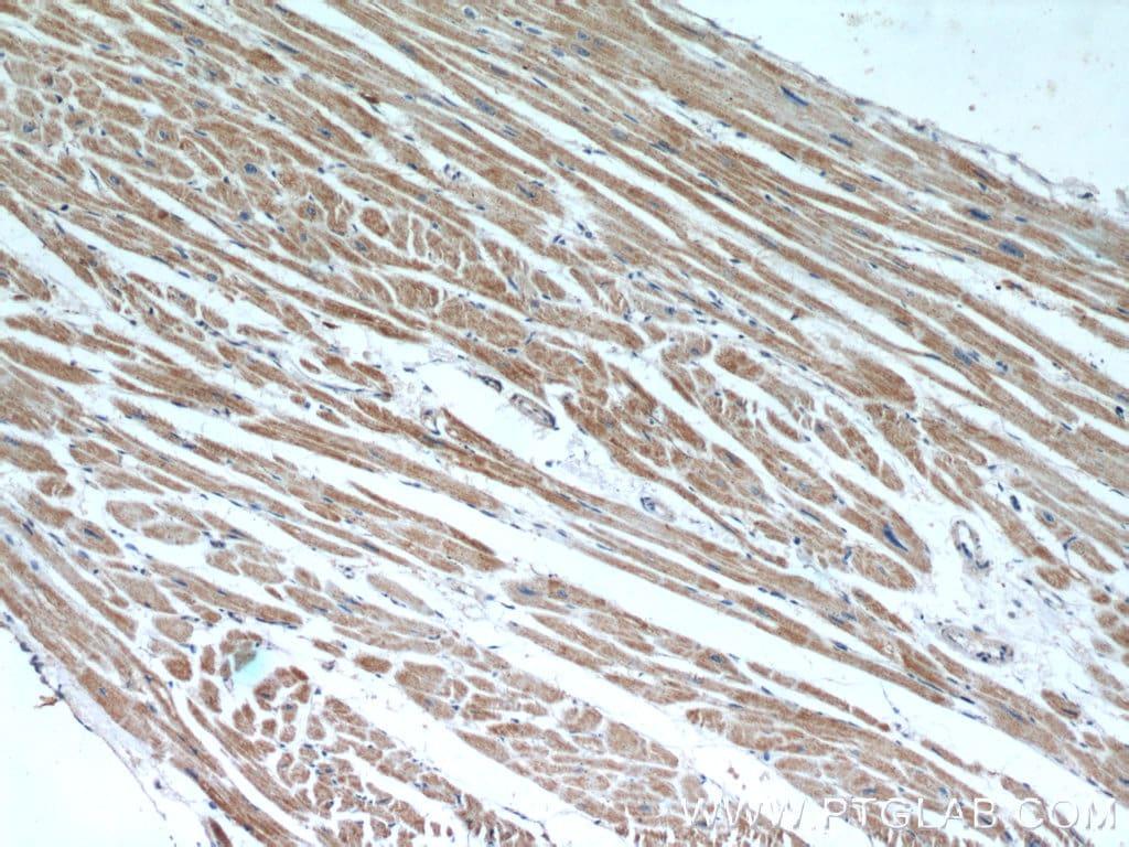 ANGPTL4 Antibody in Immunohistochemistry (Paraffin) (IHC (P))