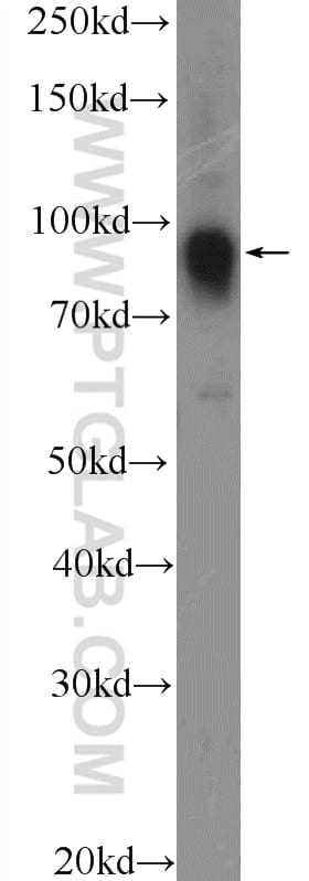 FURIN Antibody in Western Blot (WB)