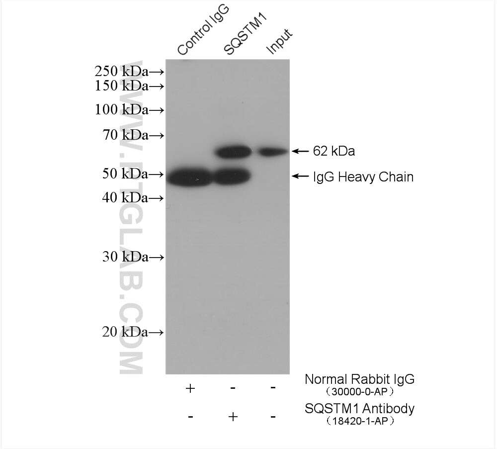 P62/SQSTM1 Antibody in Immunoprecipitation (IP)