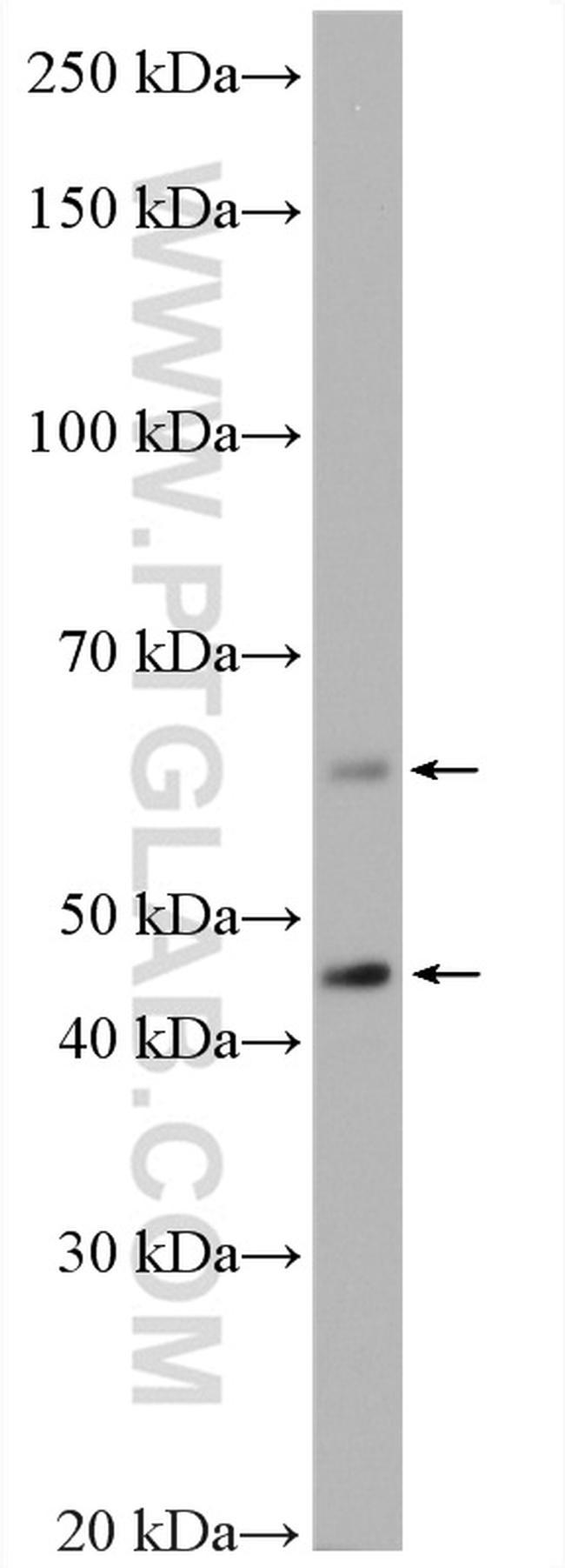 P62/SQSTM1 Antibody in Western Blot (WB)