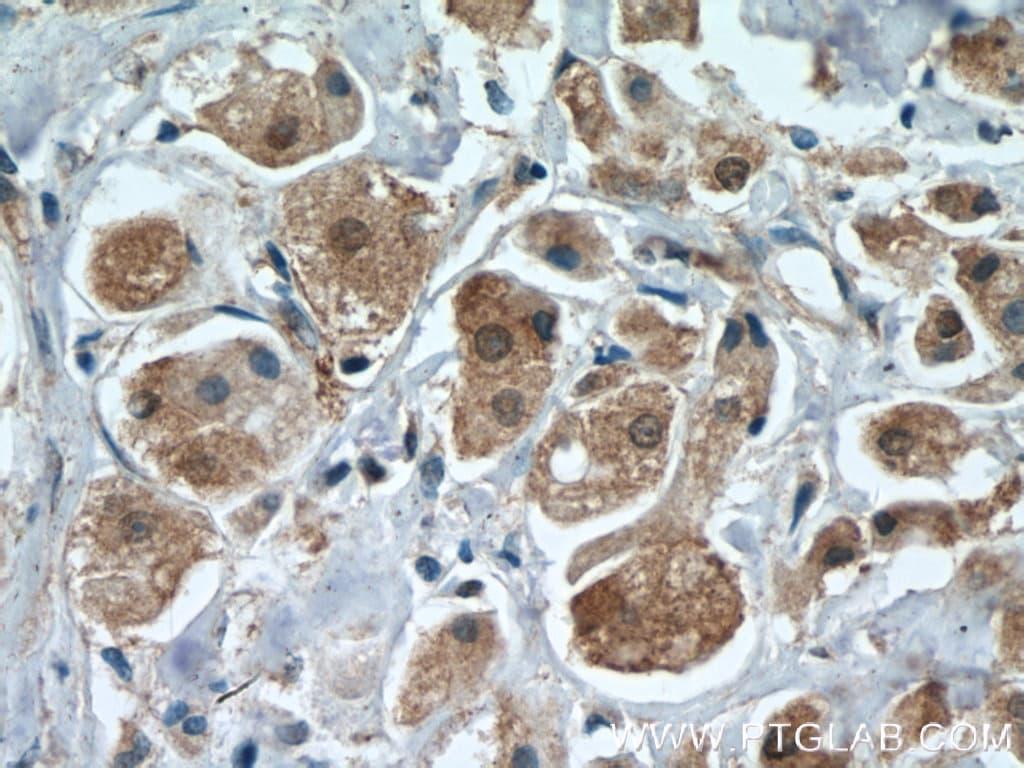 PRMT5 Antibody in Immunohistochemistry (Paraffin) (IHC (P))