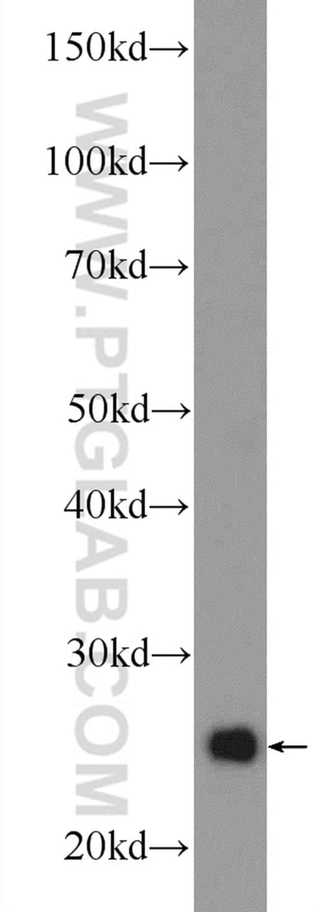 UQCRFS1 Antibody in Western Blot (WB)