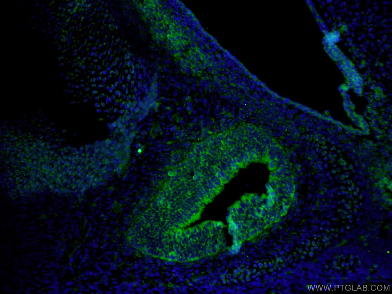 IKBKG Antibody in Immunofluorescence (IF)