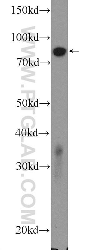 ATP4B Antibody in Western Blot (WB)