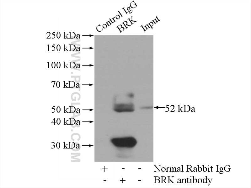 BRK Antibody in Immunoprecipitation (IP)