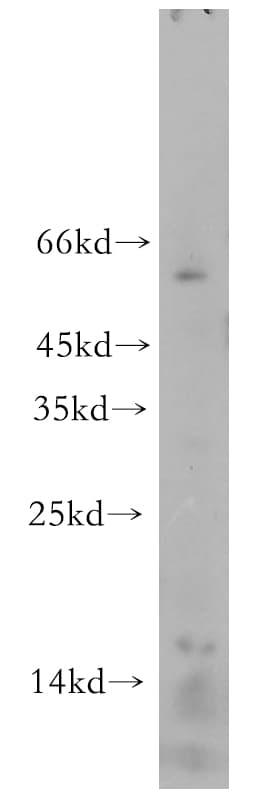 LC3A Antibody in Western Blot (WB)