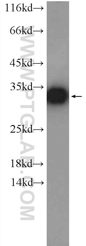 GNMT Antibody in Western Blot (WB)