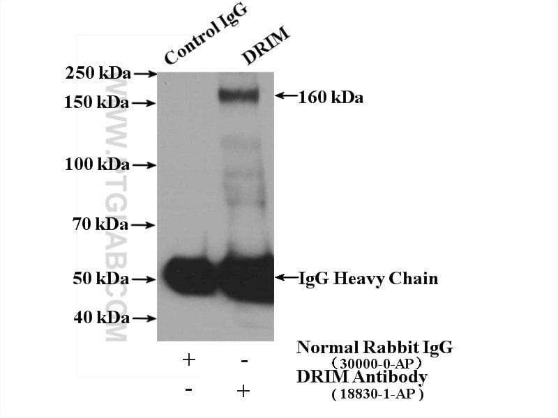 1A6/DRIM Antibody in Immunoprecipitation (IP)
