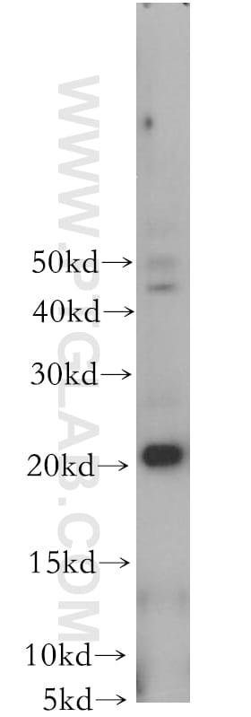 CIB4 Antibody in Western Blot (WB)