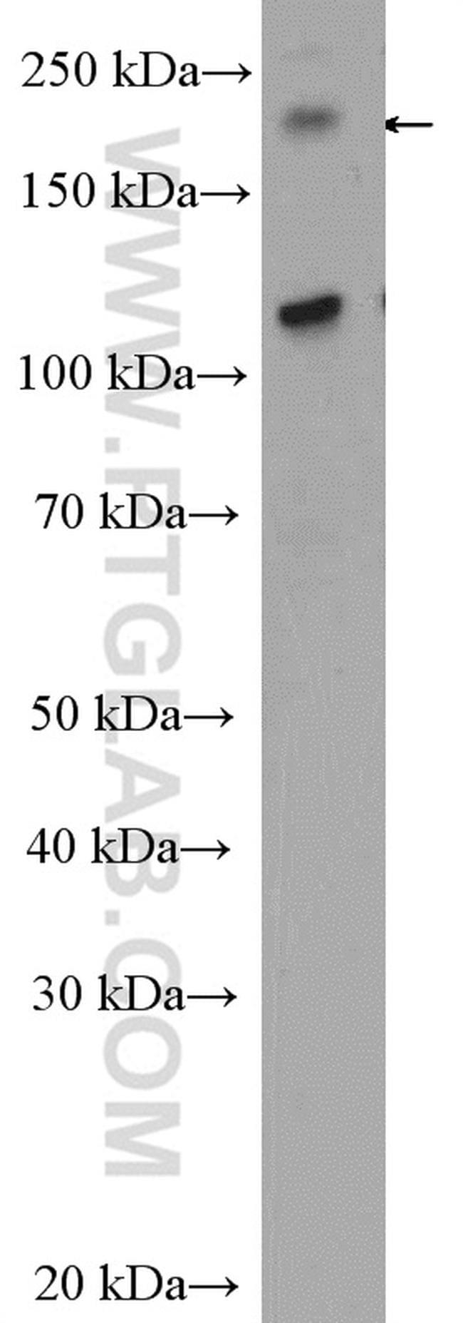 CEP170/CEP170L Antibody in Western Blot (WB)