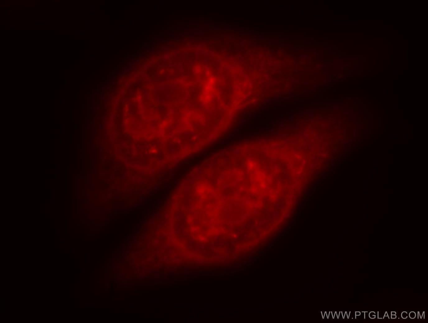 SOX13 Antibody in Immunofluorescence (IF)
