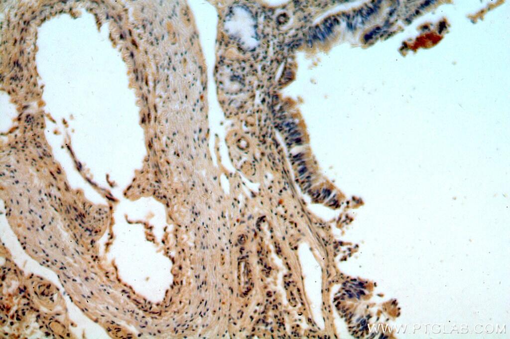 BMP2 Antibody in Immunohistochemistry (Paraffin) (IHC (P))