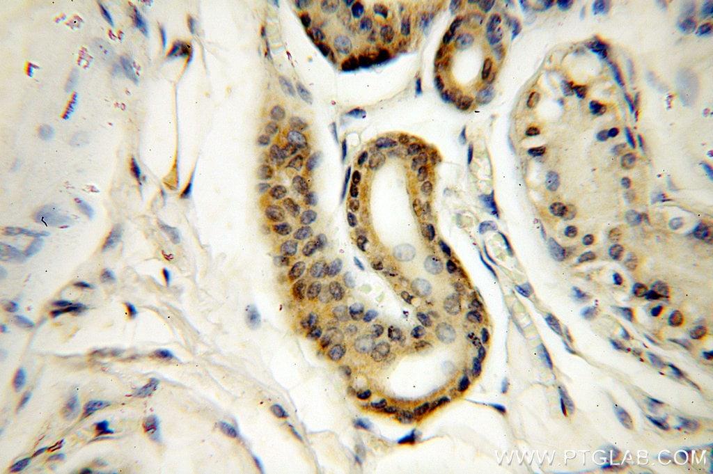 MYOD1 Antibody in Immunohistochemistry (Paraffin) (IHC (P))
