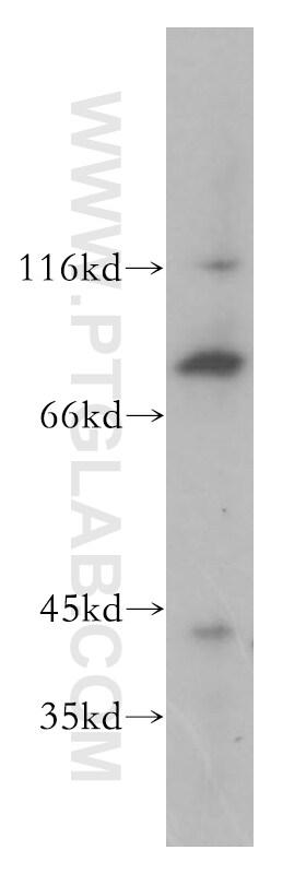 BBS7 Antibody in Western Blot (WB)