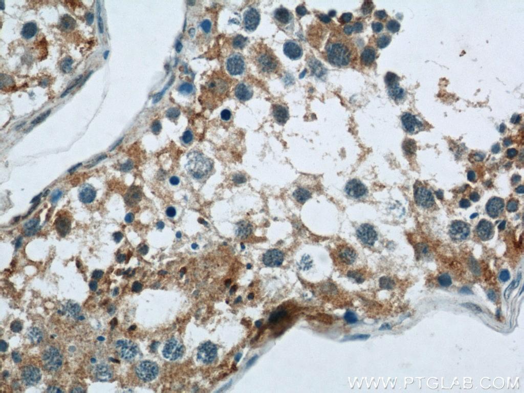 PAOX Antibody in Immunohistochemistry (Paraffin) (IHC (P))