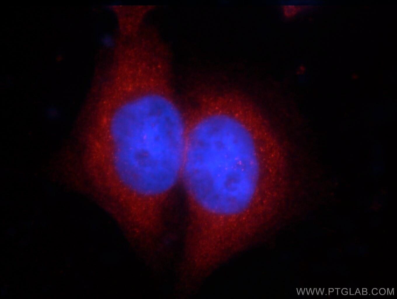 ZCCHC11 Antibody in Immunofluorescence (IF)