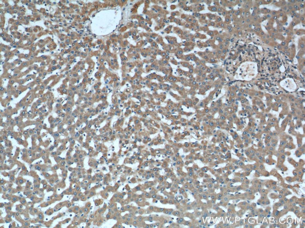 iNOS Antibody in Immunohistochemistry (Paraffin) (IHC (P))