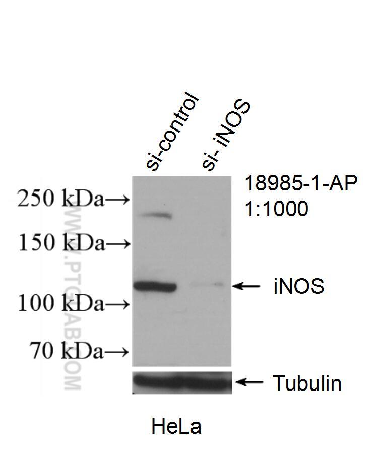 iNOS Antibody in Western Blot (WB)