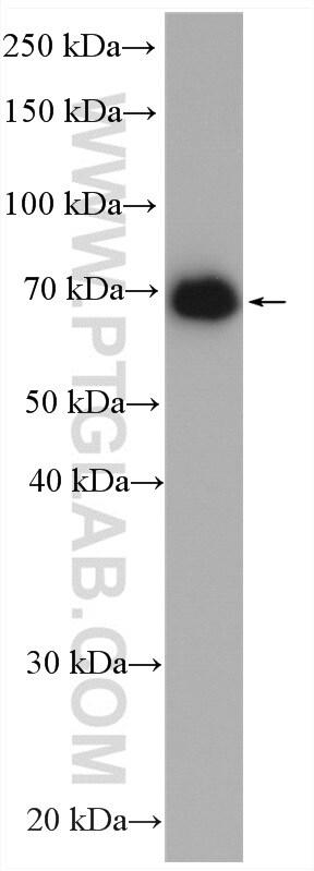 GUCY1B3 Antibody in Western Blot (WB)