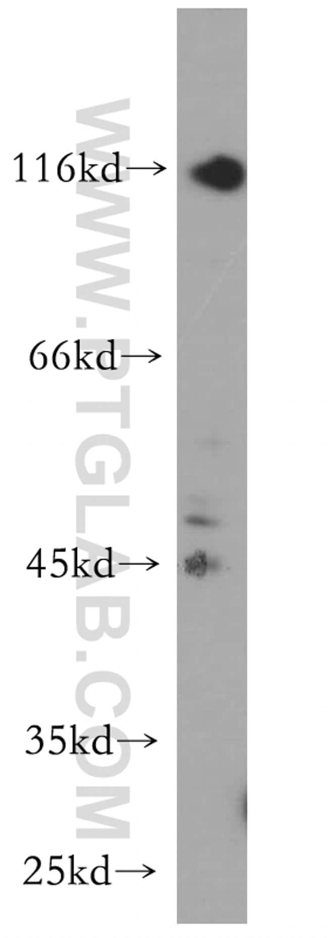 P2RX5 Antibody in Western Blot (WB)