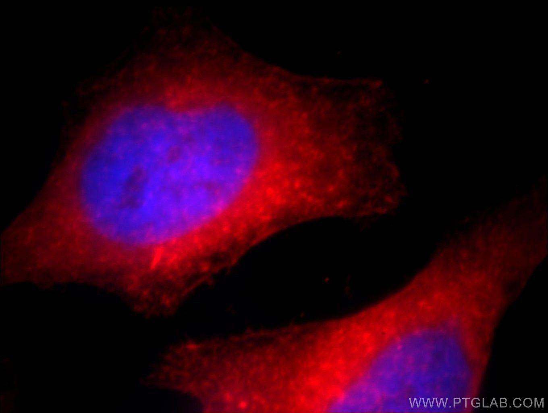 ACTN4 Antibody in Immunofluorescence (IF)