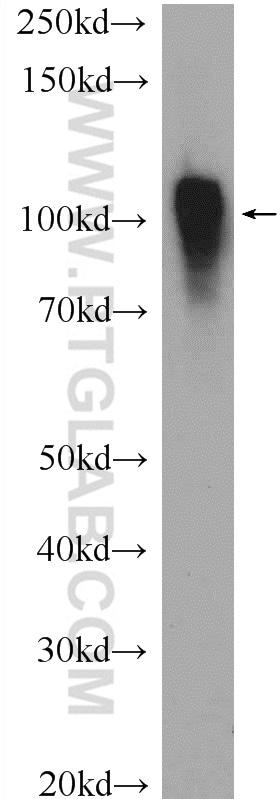 ACTN4 Antibody in Western Blot (WB)