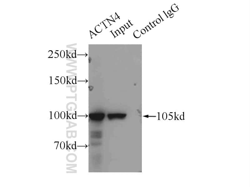ACTN4 Antibody in Immunoprecipitation (IP)
