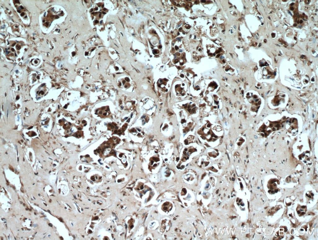 PSMB5 Antibody in Immunohistochemistry (Paraffin) (IHC (P))