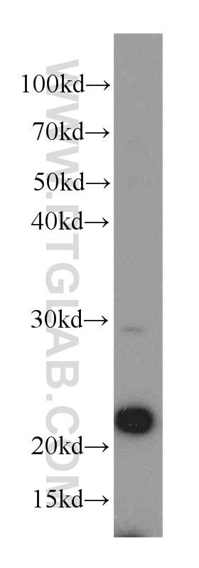 PSMB5 Antibody in Western Blot (WB)