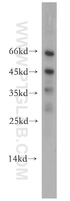 SCPx Antibody in Western Blot (WB)