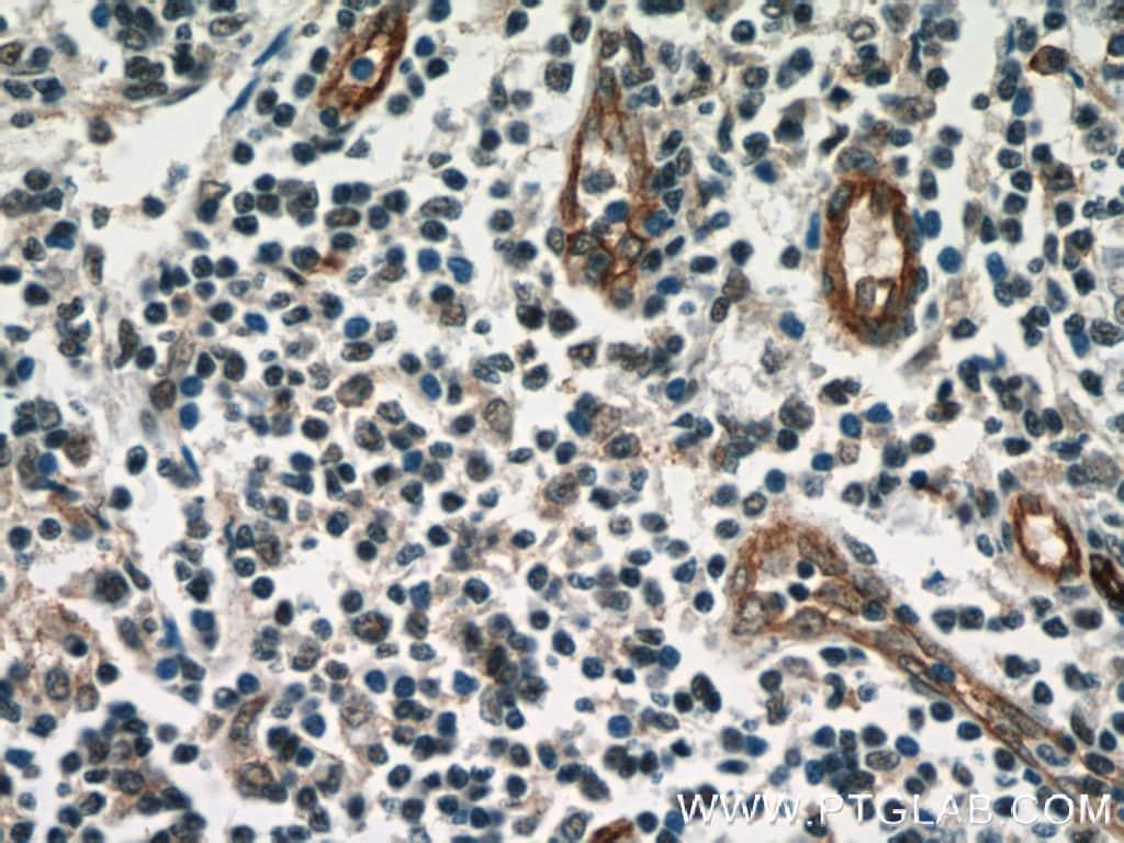 CD39/ENTPD1 Antibody in Immunohistochemistry (Paraffin) (IHC (P))