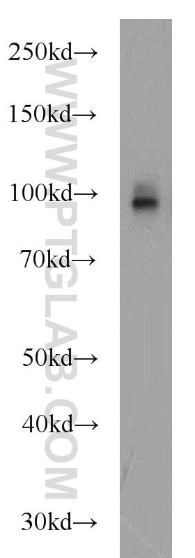 CD39/ENTPD1 Antibody in Western Blot (WB)