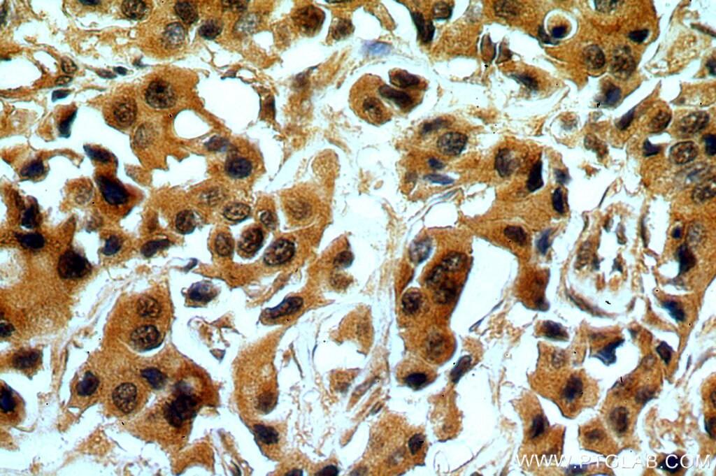 OAS2 Antibody in Immunohistochemistry (Paraffin) (IHC (P))