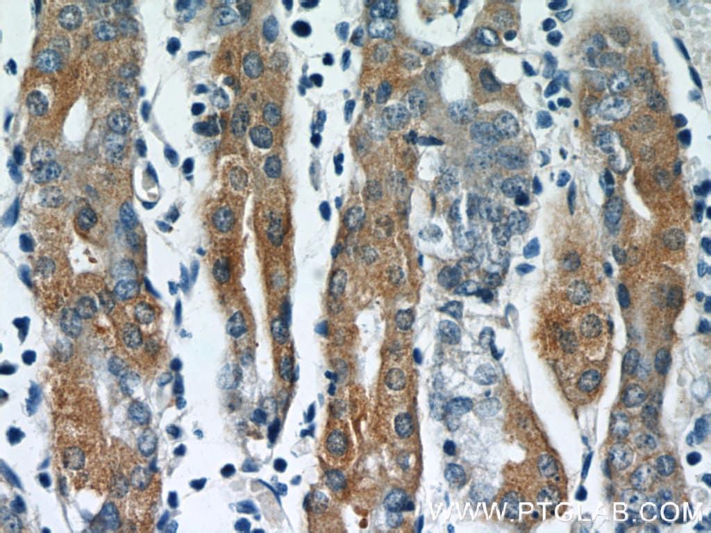 IFT122 Antibody in Immunohistochemistry (Paraffin) (IHC (P))