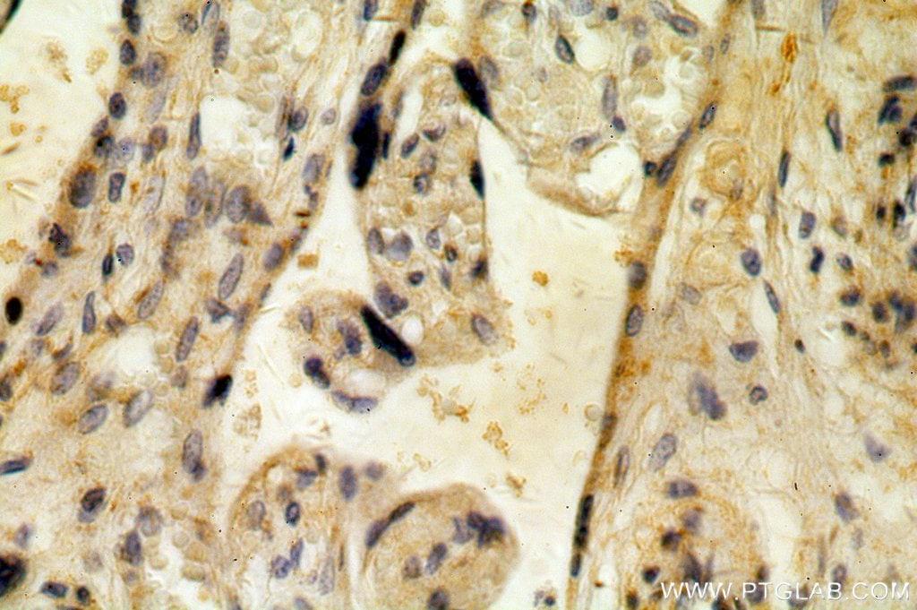 ZIP7 Antibody in Immunohistochemistry (Paraffin) (IHC (P))