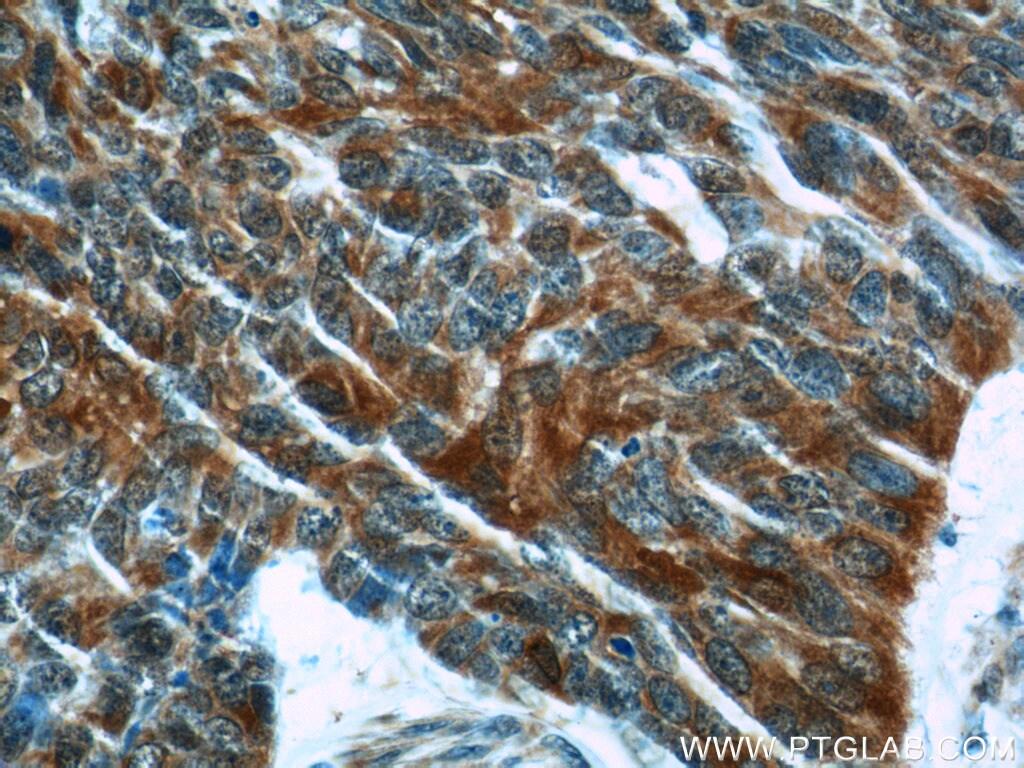 FUT4 Antibody in Immunohistochemistry (Paraffin) (IHC (P))