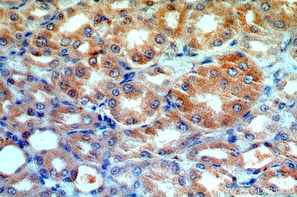 ATP6V1G3 Antibody in Immunohistochemistry (Paraffin) (IHC (P))