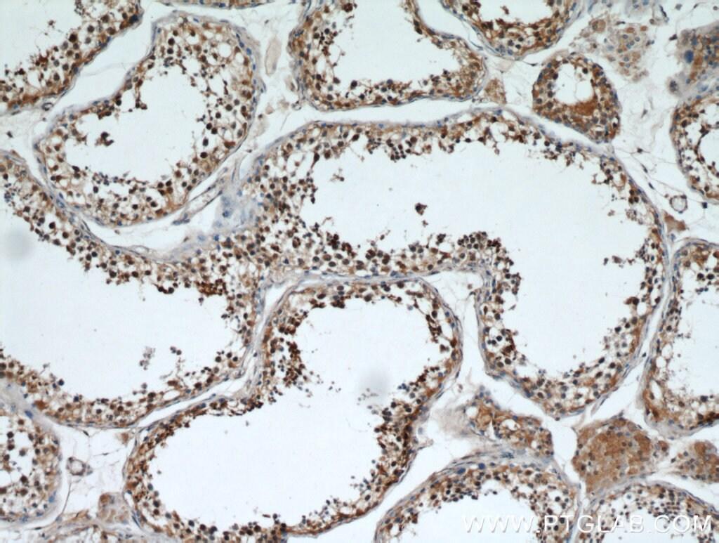 GATA4 Antibody in Immunohistochemistry (Paraffin) (IHC (P))