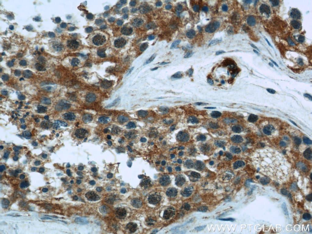 Hexokinase 1 Antibody in Immunohistochemistry (Paraffin) (IHC (P))