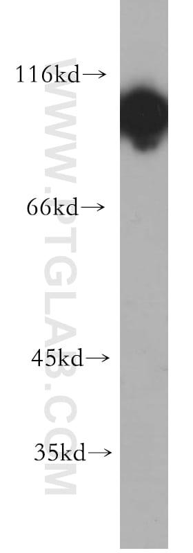 Hexokinase 1 Antibody in Western Blot (WB)