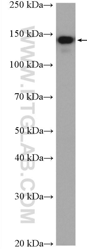 INPP5D Antibody in Western Blot (WB)