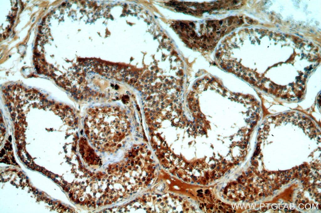 DHX32 Antibody in Immunohistochemistry (Paraffin) (IHC (P))
