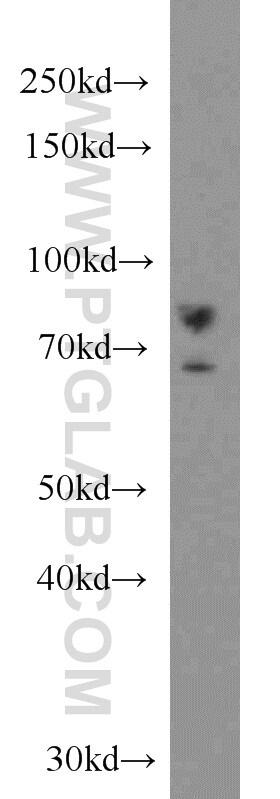 DHX32 Antibody in Western Blot (WB)