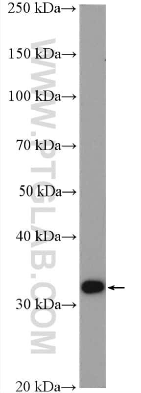 Spermidine synthase Antibody in Western Blot (WB)