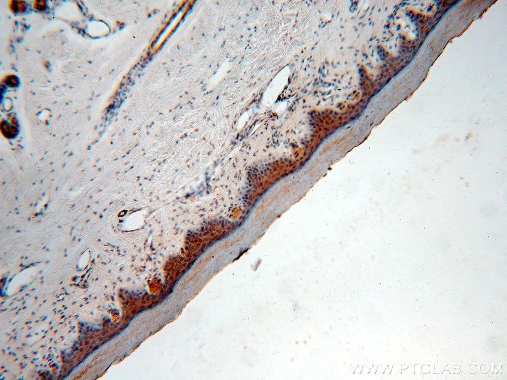 TRUB2 Antibody in Immunohistochemistry (Paraffin) (IHC (P))