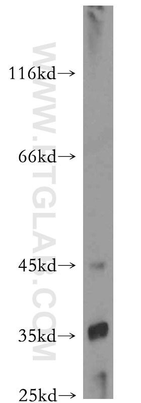TRUB2 Antibody in Western Blot (WB)
