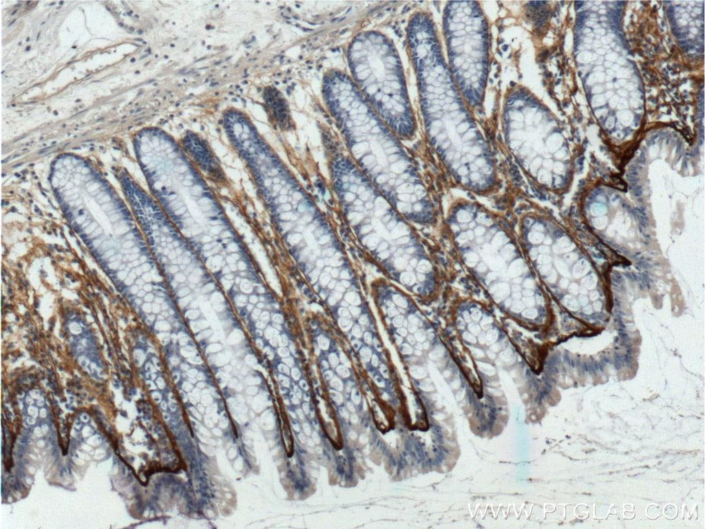 Periostin Antibody in Immunohistochemistry (Paraffin) (IHC (P))