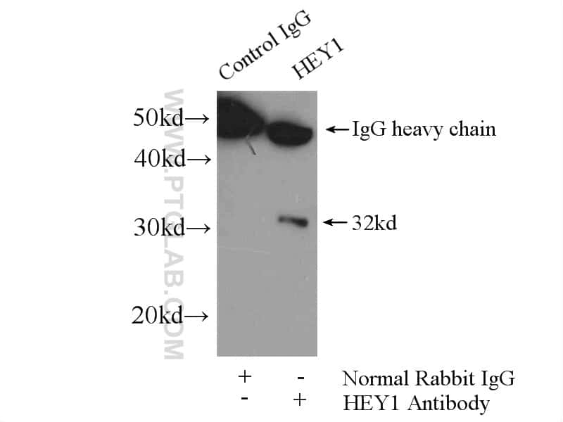 HEY1 Antibody in Immunoprecipitation (IP)