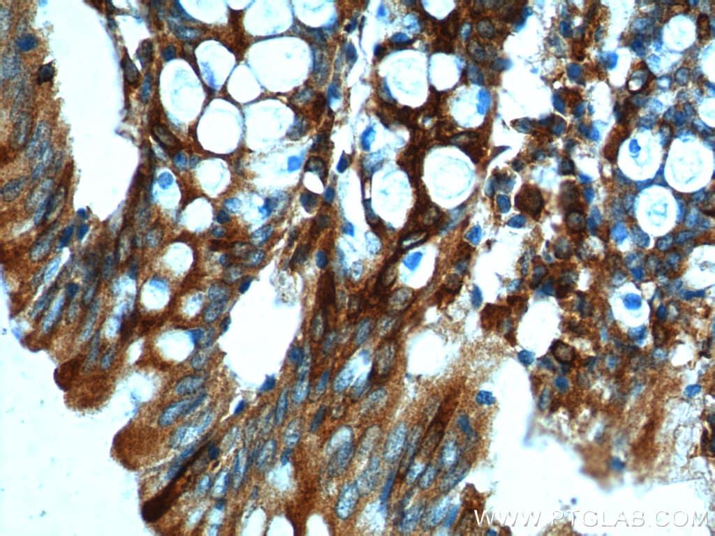 FFAR2 Antibody in Immunohistochemistry (Paraffin) (IHC (P))
